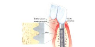 Anatomia perimplantare.
