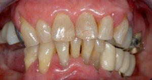 Fig. 10 La situazione dopo il trattamento mostra stabilizzazione delle zone di sanguinamento e una riduzione dell'ipersensibilità.