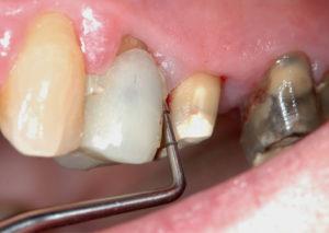 Fig. 3 Il sondaggio parodontale con la sonda WHO evidenzia tasche e sanguinamento al sondaggio (PSR 4*).