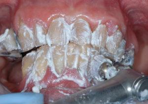 Fig. 4 Prima di iniziare l'igiene orale professionale, è stata applicata, con uno spazzolino morbido su micromotore, una pasta desensibilizzante.