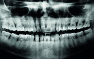 Fig. 2 L'OPT mostra l'entità delle tasche parodontali e del riassorbimento osseo.