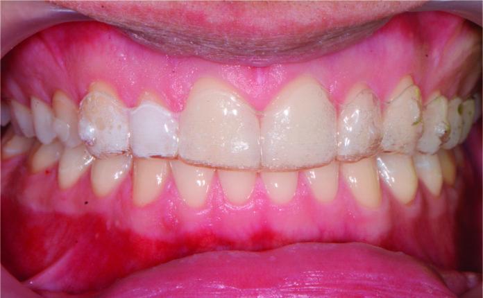 Fig. 1 Il paziente all'esame clinico.