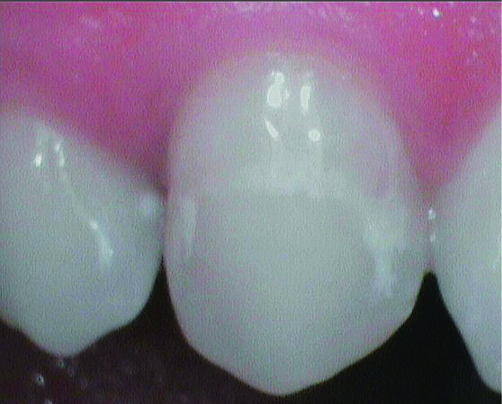 Fig. 5 Ingrandimento con videocamera intraorale delle white spot.