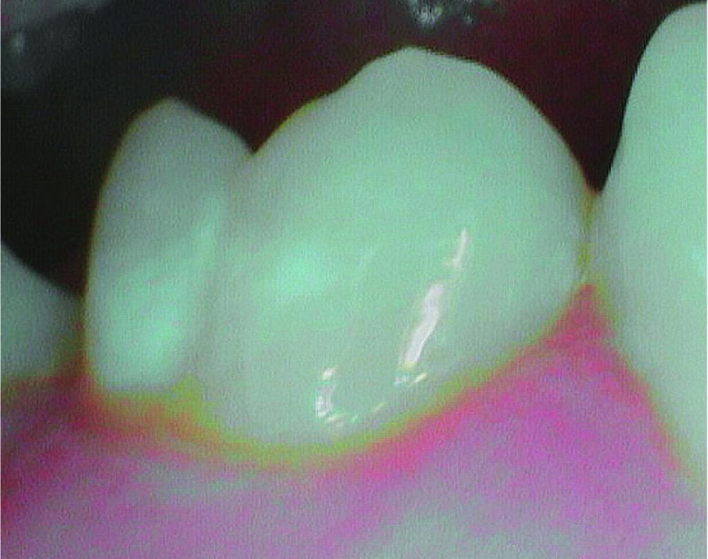 Fig. 6 Ingrandimento con videocamera intraorale delle white spot.