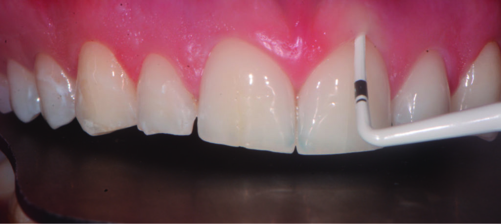 Fig. 7 Valutazione delle caratteristiche anatomiche e del biotipo tissutale del cavo orale.